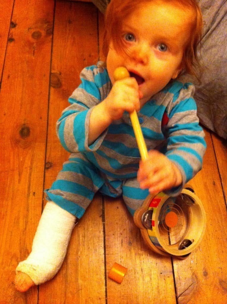 When Our Toddler Broke Her Leg