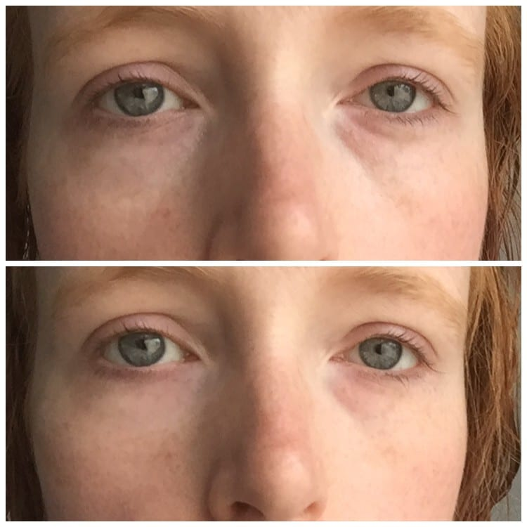 Review: Remescar Eye Bag and Dark Circles Cream #NoMoreBaggage