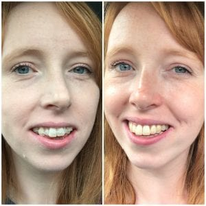 Getting my Teeth Straightened as an Adult – The End Results