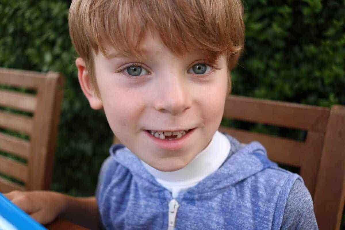 The Trauma of Teeth {The Ordinary Moments}