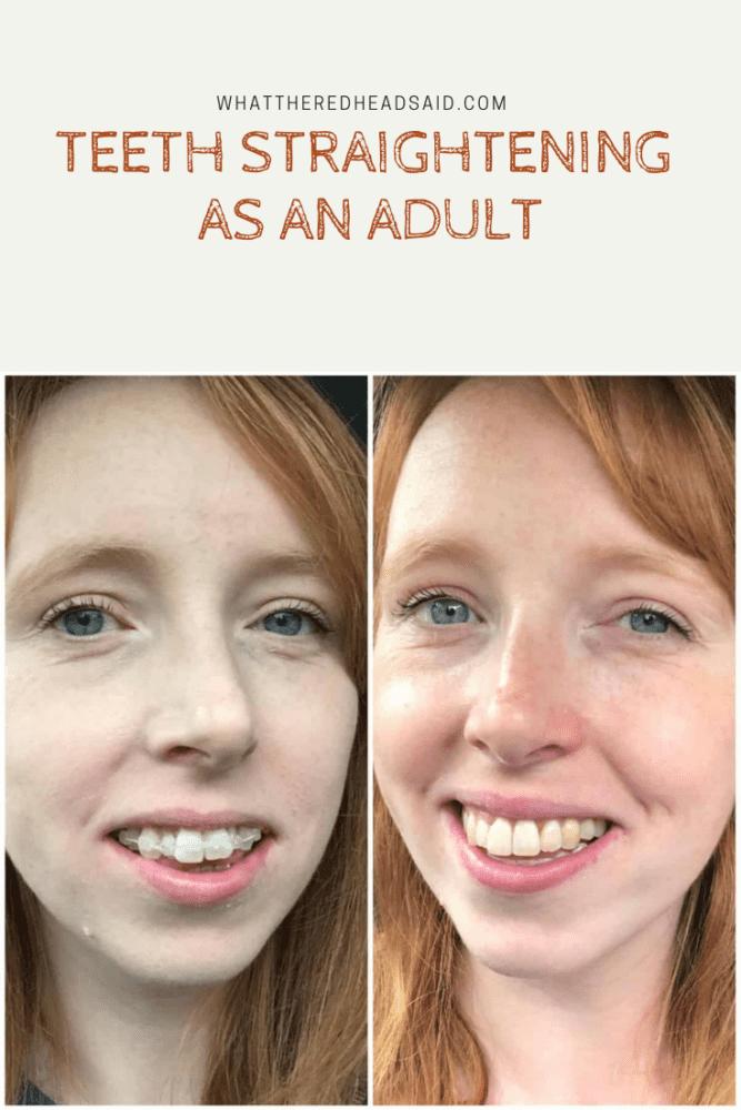 Teeth Straightened as an Adult